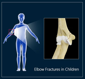 Elbow Fractures in Children